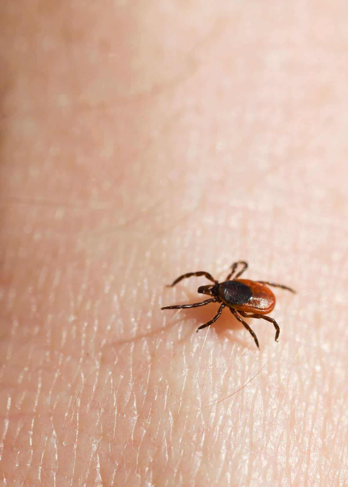 6 Ways to Remove a Tick Head After the Body is Gone (Dogs
